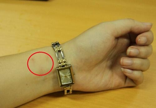dị ứng khi đeo dây đồng hồ kim loại